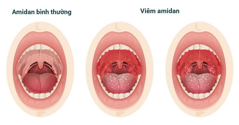 Hình ảnh viêm amidan - tình trạng nhiều người mắc hiện nay