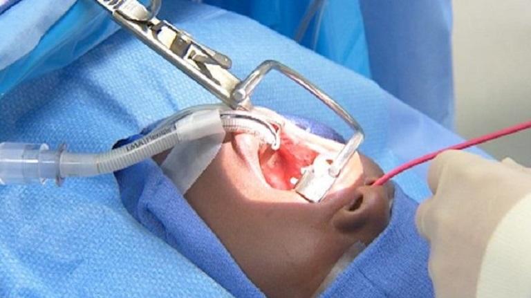 Phẫu thuật viêm amidan