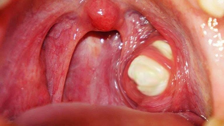 Viêm họng đặc hiệu tương đối nguy hiểm