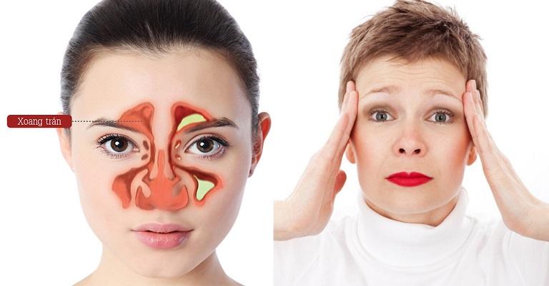 Viêm xoang là bệnh lý dễ mắc, gây nhiều biến chứng cho sức khỏe