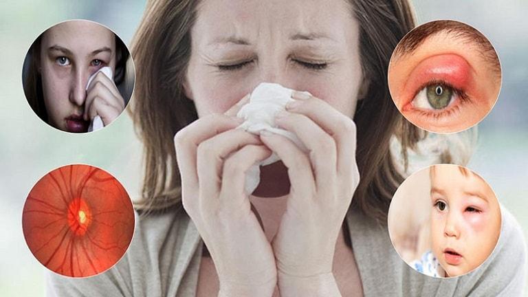 Viêm xoang có thể gây nhiều biến chứng khác nhau