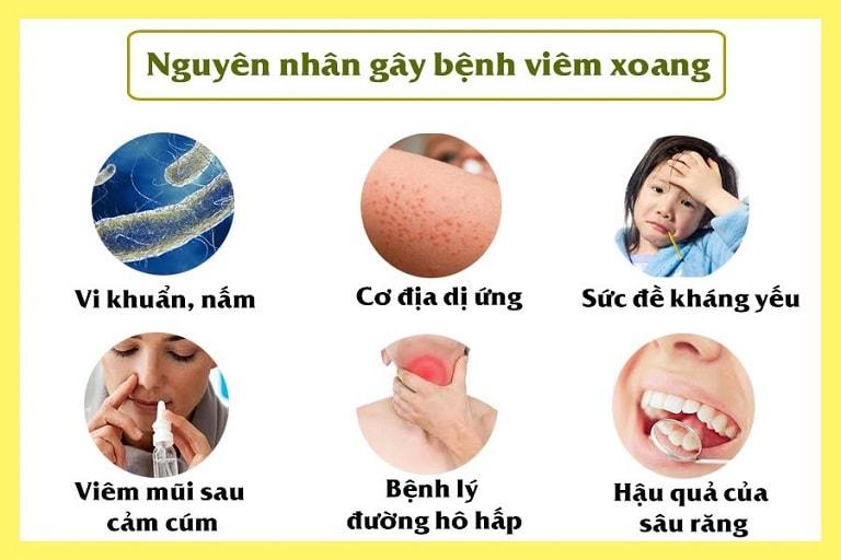 Có nhiều nguyên nhân dẫn đến bệnh viêm xoang