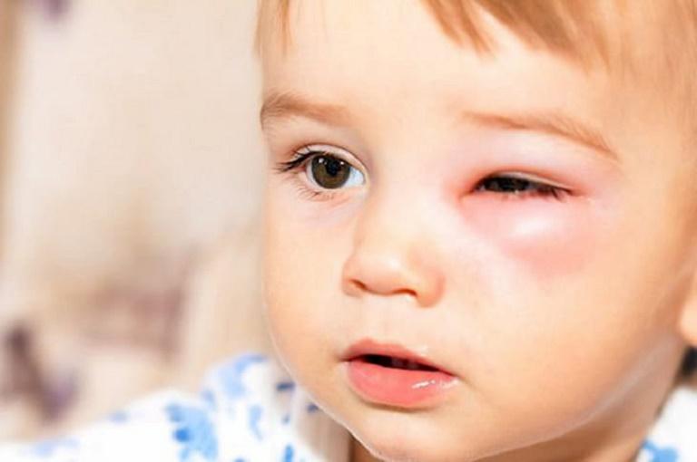 Trẻ nhỏ bị viêm xoang rất dễ phát sinh các biến chứng nguy hiểm