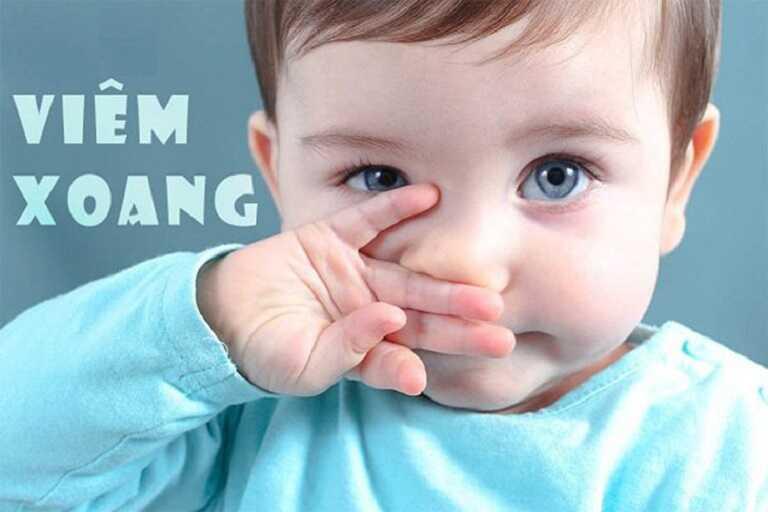 Viêm xoang ở trẻ em là tình trạng nhiễm trùng niêm mạc lót tại khoang xoang nằm cạnh mũi