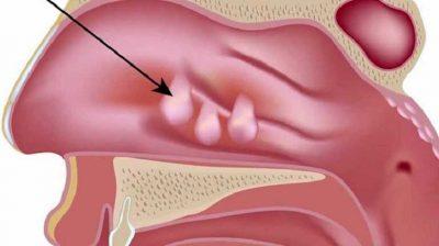 Viêm xoang Polyp mũi là gì? Dấu hiệu nhận biết và cách điều trị hiệu quả