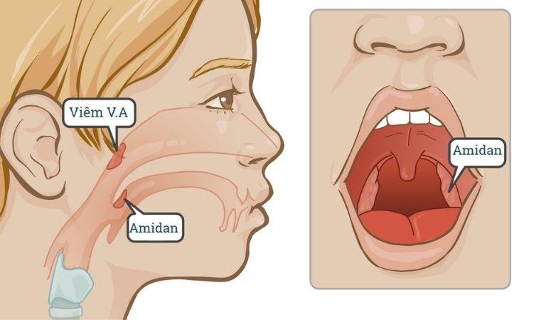 Hướng dẫn phòng ngừa bệnh về amidan