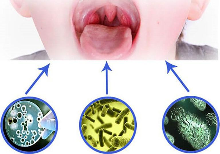 Vi khuẩn xâm nhập là nguyên nhân chính dẫn tới amidan áp xe