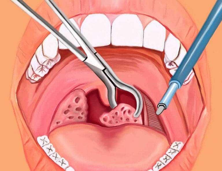 Cắt amidan là phẫu thuật được chỉ định cho một số trường hợp cụ thể