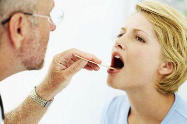 Viêm amidan mãn tính là tình trạng các triệu chứng viêm amidan kéo dài từ 1 tháng trở lên và bệnh tái phát nhiều lần trong năm