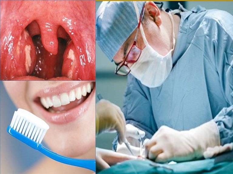 Cắt amidan xong có đánh răng được không?