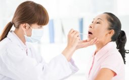 Thuốc chữa viêm họng