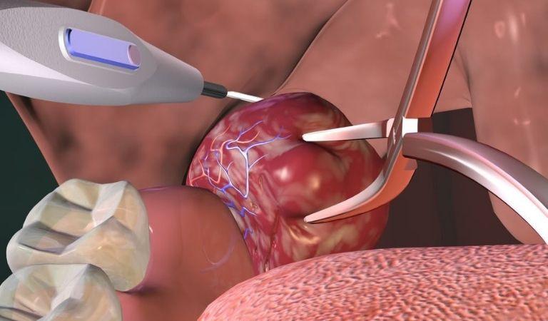 Cắt amidan bị viêm bằng dao siêu âm