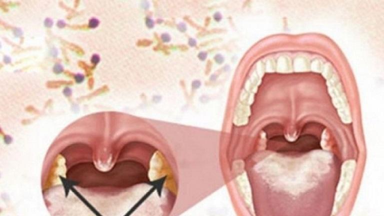 Viêm họng bạch hầu là bệnh lý rất nguy hiểm, có tính lây lan nhanh và có thể gây tử vong