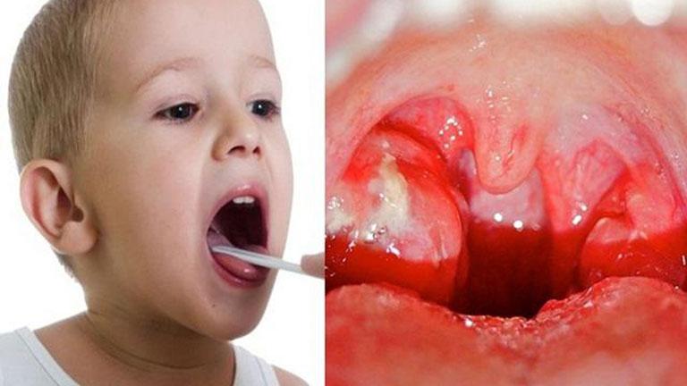Viêm họng cấp khiến amidan của trẻ sưng to