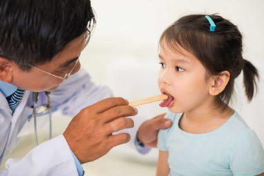 Viêm họng cấp ở trẻ