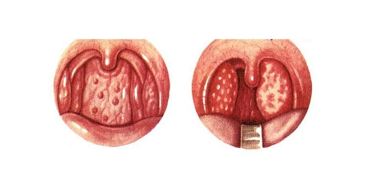 Hình ảnh các hạt viêm trong họng của người bệnh