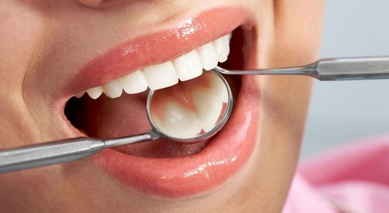 Người bệnh cần vệ sinh họng, miệng sạch sẽ