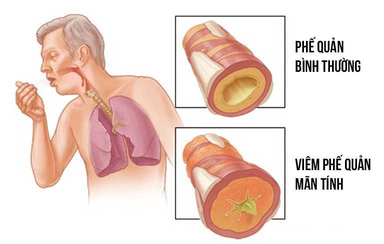 Hình ảnh người mắc bệnh viêm phế quản