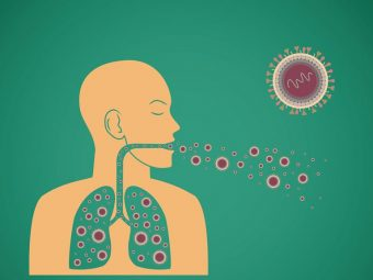 Bệnh ho lao là một dạng bệnh lý đường hô hấp do nhiễm khuẩn. Vi khuẩn gây bệnh ho lao là Mycobacterium Tuberculosis