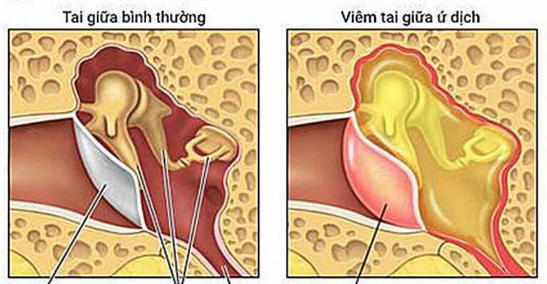 Viêm tai giữa ứ dịch là trình trạng dịch tiết bị ứ đọng phía sau màng tai