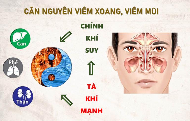 Căn nguyên của bệnh viêm xoang, viêm mũi