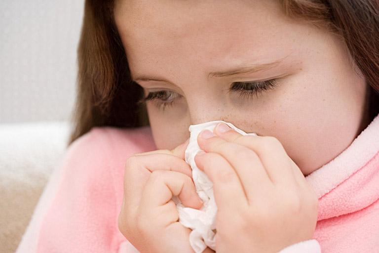 Bệnh viêm mũi họng xuất tiết gây ra hiện tượng dịch nhầy, đặc chảy từ khoang mũi và họng