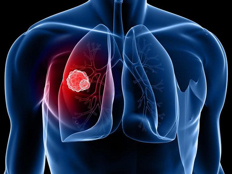 Biến chứng áp xe phổi của người bệnh viêm phế quản