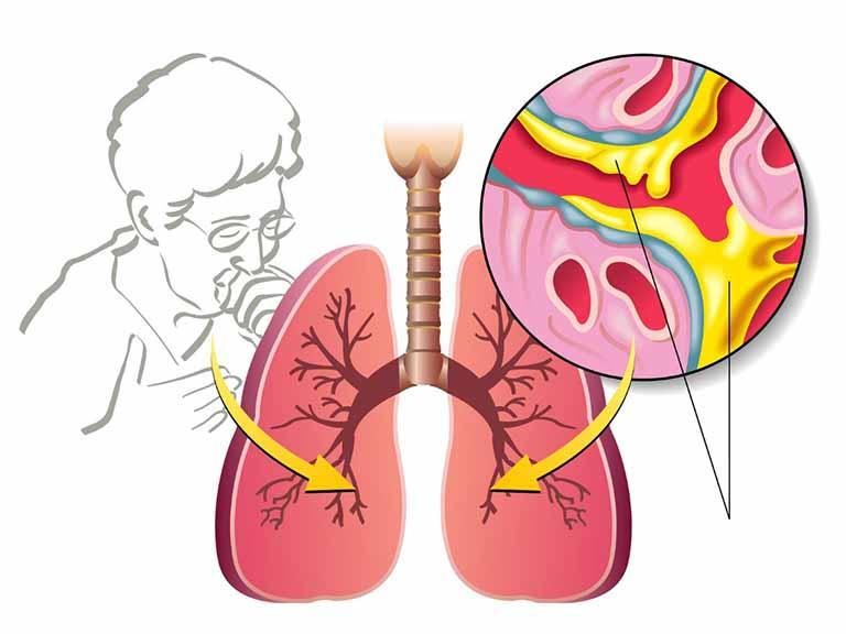 Tình trạng này cso thể gây ra biến chứng bít tắc đường thở rất nguy hiểm