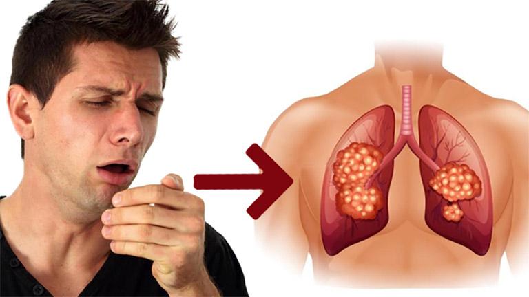 Ho kéo dài có thể là dấu hiệu cảnh báo bệnh lao phổi