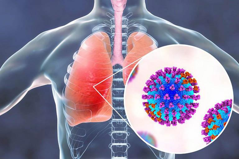 Triệu chứng điển hình của viêm phổi là ho nhiều