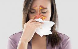 Nghẹt mũi là một trong những dấu hiệu thường gặp của bệnh viêm xoang