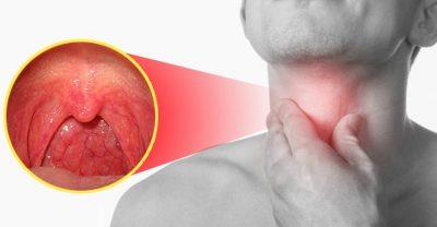 Phác đồ điều trị bệnh viêm họng hiệu quả