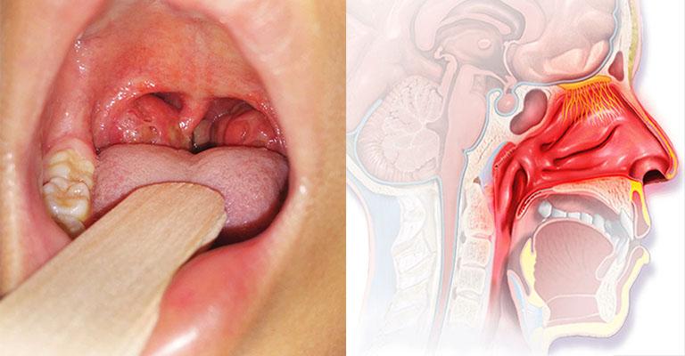 Viêm amidan ở giai đoạn khởi phát không gây sốt hay ho