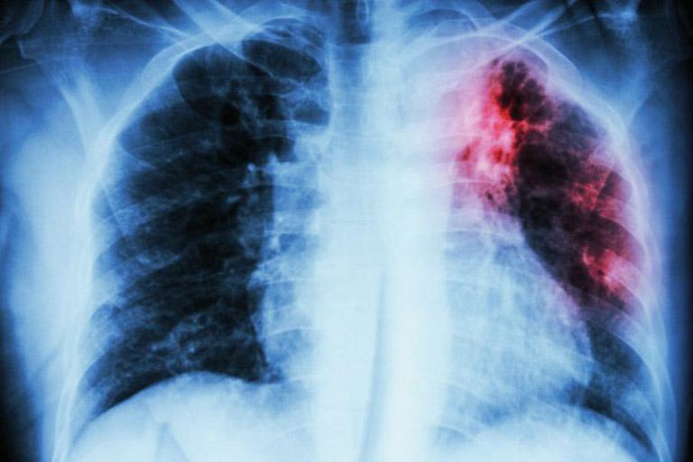 Viêm họng ra máu có thể là dấu hiệu của ung thư phổi