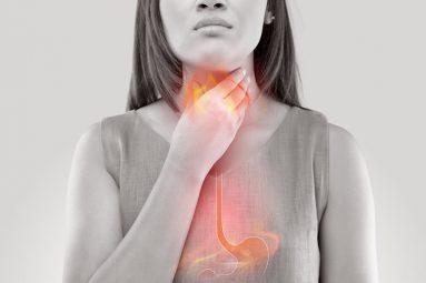 viêm họng trào ngược dạ dày thực quản