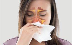 Viêm mũi xoang xuất tiết là một tình trạng nặng của bệnh viêm xoang, xoang có hiện tượng xung huyết và tiết dịch nhầy rất nhiều