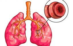 Viêm phế quản co thắt là tình trạng khởi phát khi niêm mạc ống khí quản bị viêm sưng, tiết nhiều dịch nhầy hơn so với thông thường