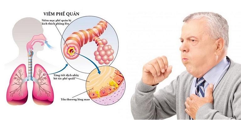 Viêm phế quản mạn tính, viêm phế quản mãn tính là tình trạng niêm mạc của ống phế quản bị viêm nhiễm trong thời gian dài