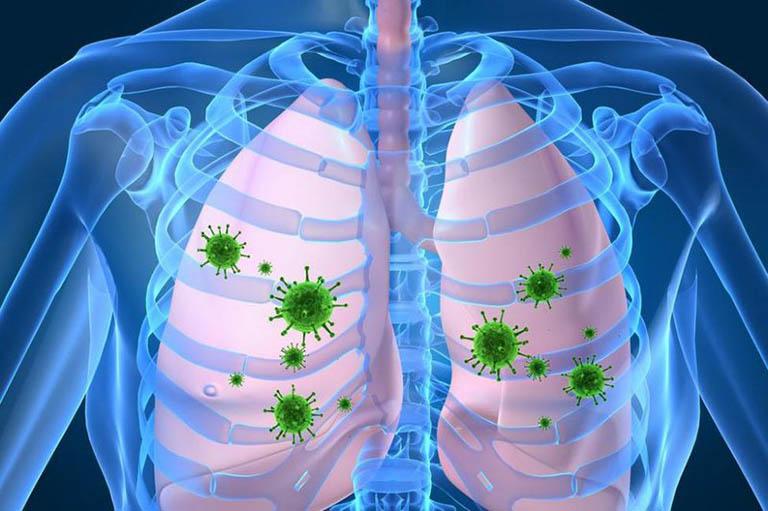 Bệnh có nguyên nhân do sự xâm nhập của vi khuẩn, virus