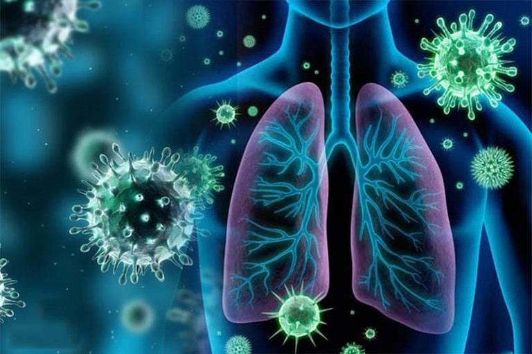 Tác nhân phổ biến là phế cầu khuẩn Streptococcus pneumoniae và Haemophilus influenzae type B