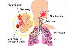 Viêm phế quản phổi là một bệnh lý hô hấp thuộc thể cấp tính, khởi phát do vi khuẩn, virus tấn công