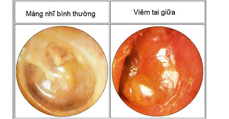 Hình ảnh viêm tai giữa cấp