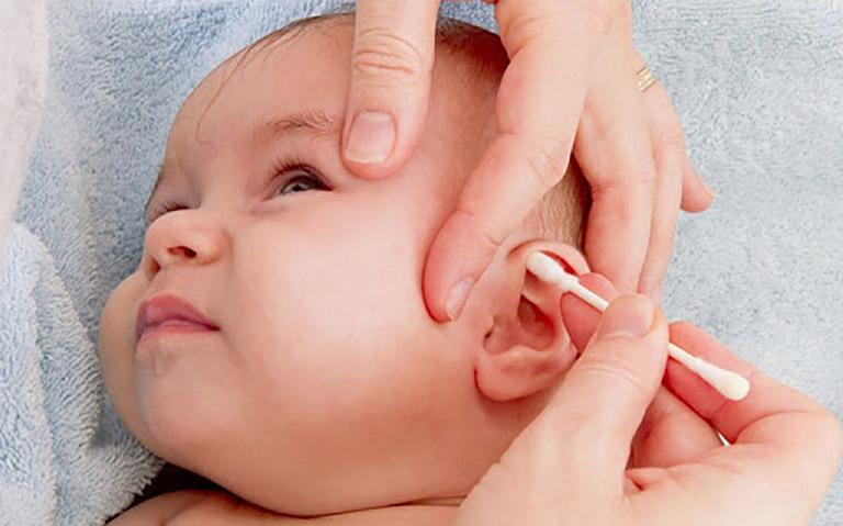 Viêm tai giữa tái phát nhiều lần, các lần sau nặng và kéo dài hơn ở giai đoạn mãn tính
