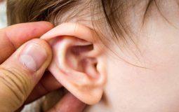 Viêm tai giữa thanh dịch