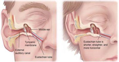 Bệnh viêm tai giữa xung huyết