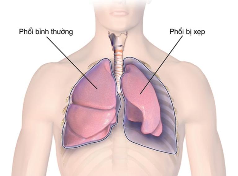 Biến chứng xẹp phổi ở người bệnh viêm tiểu phế quản bội nhiễm