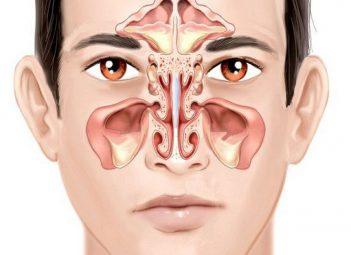Viêm xoang cấp là tình trạng các hốc xoang bị sưng, viêm trong khoảng thời gian ngắn