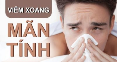 Viêm xoang mạn tính là một biến thể tương đối nghiêm trọng của bệnh lý viêm mũi xoang thông thường