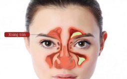 Viêm xoang trán là một bệnh lý thuộc thể viêm xoang khá thường gặp