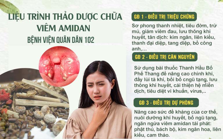 Liệu trình thảo dược chữa viêm amidan Quân dân 102